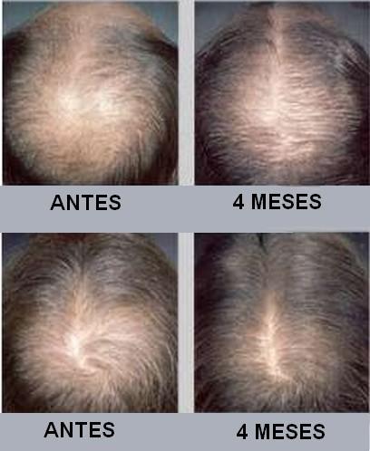 El complejo barato de las vitaminas para los cabellos